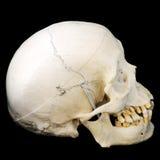 Crânio humano, vista lateral foto de stock