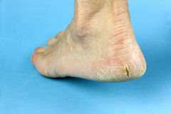 Cracked heel on blue background Stock Photos