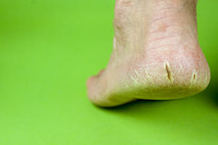 Cracked heel on green background Royalty Free Stock Images
