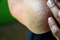 Cracked heels. Detailed on the cracked heels Royalty Free Stock Image