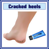 Cracked heels. Foot diseases. Dermatology. Stock Photo