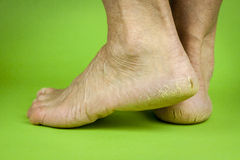 Cracked heels on green background Royalty Free Stock Images