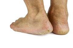 Cracked heels on white background Royalty Free Stock Photography