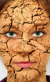 Cracked Skin Royalty Free Stock Photo