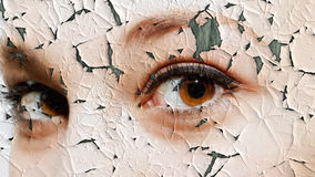 Cracked Skin Stock Images
