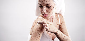 Cracked skin treatment. Cosmetic concept Stock Photos
