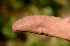 Cracked skin on a workman's hand Stock Photo