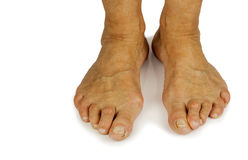 Cracked toe and bunion deformity. In white backgrouynd. Copy space Stock Photos