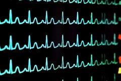 Écran avec le cardiogramme Photos libres de droits
