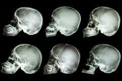 Cranio asiatico Fotografie Stock