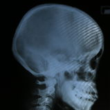 Cranio dei raggi x del film dell'essere umano Fotografia Stock Libera da Diritti