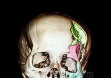 cranio fratturato severo Fotografia Stock