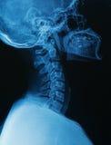 Cranio umano dei raggi x e spina dorsale cervicale della spina dorsale Immagini Stock Libere da Diritti
