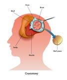 Craniotomy vektor illustrationer