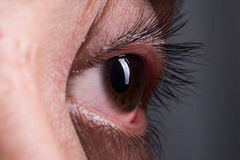 Crazy Eye Royalty Free Stock Photos