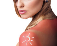 Cream on the shoulder of woman with sunburn royalty free stock photography