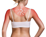 Cream on the shoulder of woman with sunburn. Sunblock cream on the shoulder of young woman with sunburn isolated on white Royalty Free Stock Image