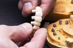 Crear las coronas temporales en los implantes Imágenes de archivo libres de regalías