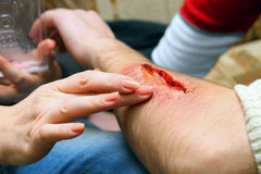 Creation of an artificial wound Royalty Free Stock Image