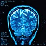 Cérebro MRI Imagens de Stock