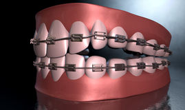 Creepy Teeth With Braces Stock Photo