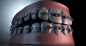 Creepy Teeth With Braces Royalty Free Stock Image