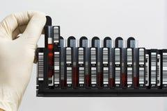 Cremalheira com amostras de sangue Imagens de Stock Royalty Free