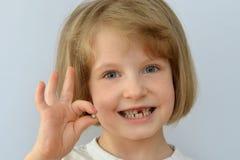 A criança, criança, mostra o dente de bebê caído imagens de stock