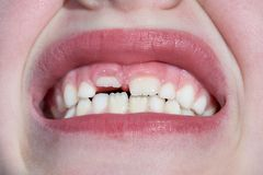 A criança tem um dente de leite e um dente adulto novo cresce fotografia de stock royalty free