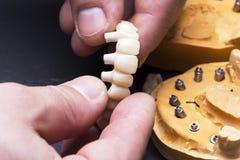 Criando coroas provisórias em implantes Imagens de Stock Royalty Free