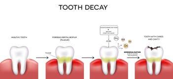 Cárie e cavidade do dente Fotografia de Stock Royalty Free