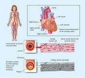 Crise cardiaque due à l'artère bloquée Photos stock