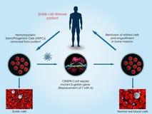 CRISPR-Cas9 para tratar la anemia de células falciformes Imagen de archivo libre de regalías