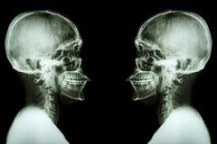 Cráneo de la radiografía y espina dorsal cervical Fotografía de archivo