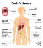 Crohn ασθένεια ή Crohn σύνδρομο διανυσματική απεικόνιση