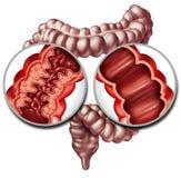 Crohn ασθένεια και υγιές έντερο απεικόνιση αποθεμάτων