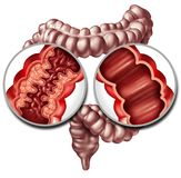 Crohn Disease And Healthy Intestine. Crohn syndrome disease or crohns illness and healthy colon as a medical concept with a close up of a human intestine with stock illustration