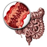 Crohn Disease Medical Illness. Crohn's disease or crohn illness medical concept as a close up of a human intestine with inflammation symptoms causing Royalty Free Stock Images