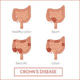 Crohn's disease. Inflammatory bowel disease. Cartoon illustration for medical atlas or educational textbook royalty free illustration