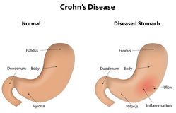 Crohns Disease. A wonderfully presented pathology with 3D shading vector illustration