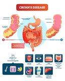 Crohns disease vector illustration. Labeled diagram with diagnosis. Crohns disease vector illustration. Labeled diagram with diagnosis and symptoms. Infographic vector illustration