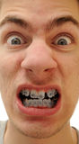 Crooked teeth. Young white causcasian man shows off his new braces on his pure white teeth Stock Images
