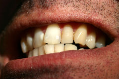 Crooked teeth. Close-up of crooked teeth royalty free stock photography