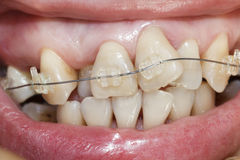 Crooked teeth with braces. Royalty Free Stock Image