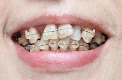 Crooked teeth with braces. Royalty Free Stock Photos