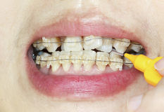 Crooked teeth with braces, interdental brushing Royalty Free Stock Photos