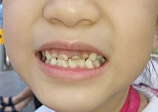 Crooked teeth. A child's crooked milk teeth royalty free stock photography