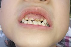 Crooked teeth. Dirty yellow crooked child's teeth stock image