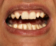 Crooked teeth. Orthodontics. Underdevelopment and defects of teeth. Royalty Free Stock Photography