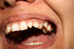 Crooked teeth. Orthodontics. Underdevelopment and defects of teeth. Stock Image